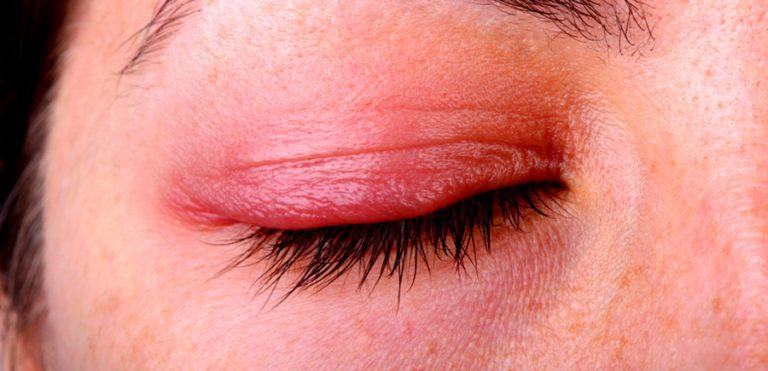 Ocular Rosacea: Symptoms, Treatments, Triggers, & Home Remedies