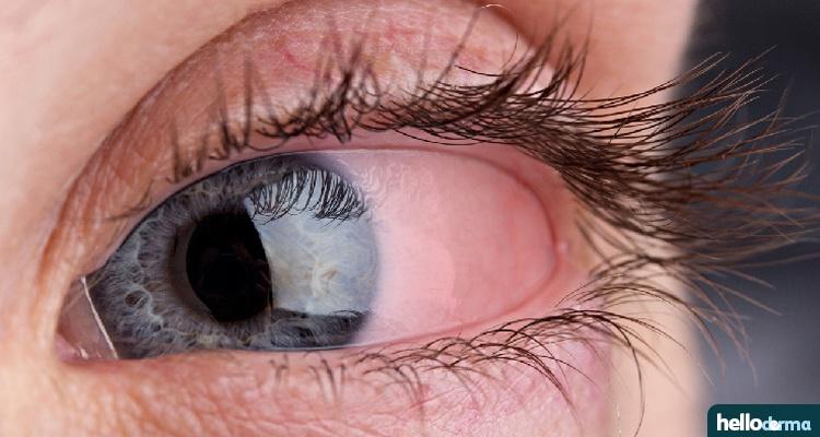 ocular rosacea red eye