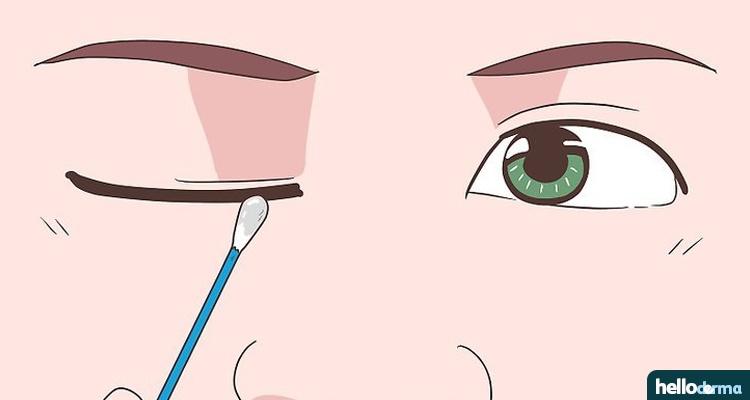 treat ocular rosacea