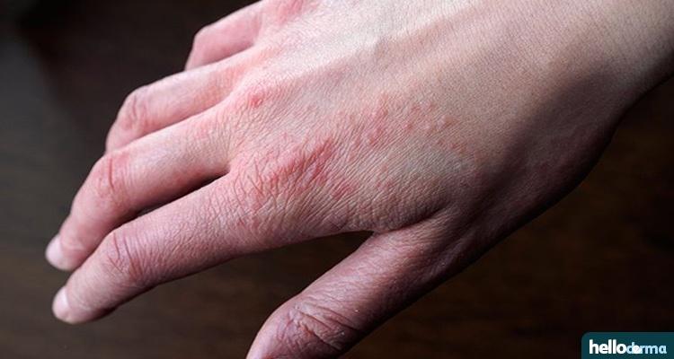 Apple Cider Vinegar to help Eczema