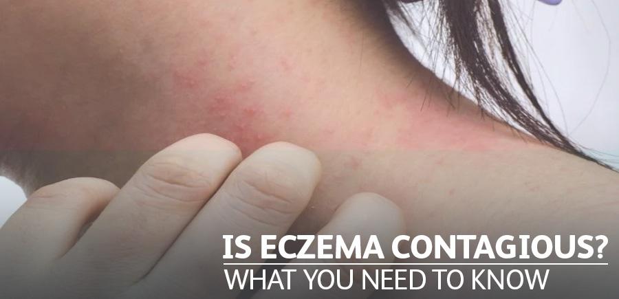 Is Eczema Contagious