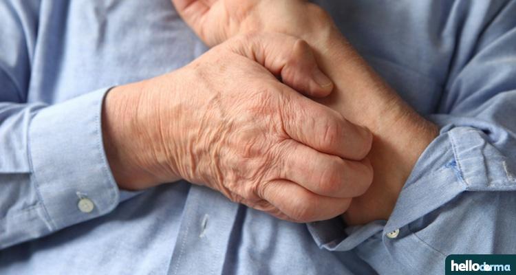 eczema contagion