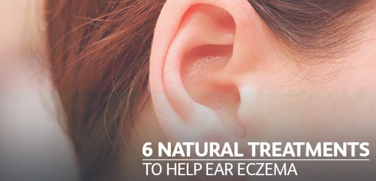 6 Natural Ear Eczema Treatments