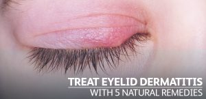 5 Natural Remedies to Treat Eyelid Dermatitis
