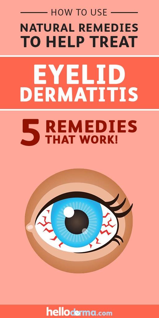 Treating Eyelid Dermatitis