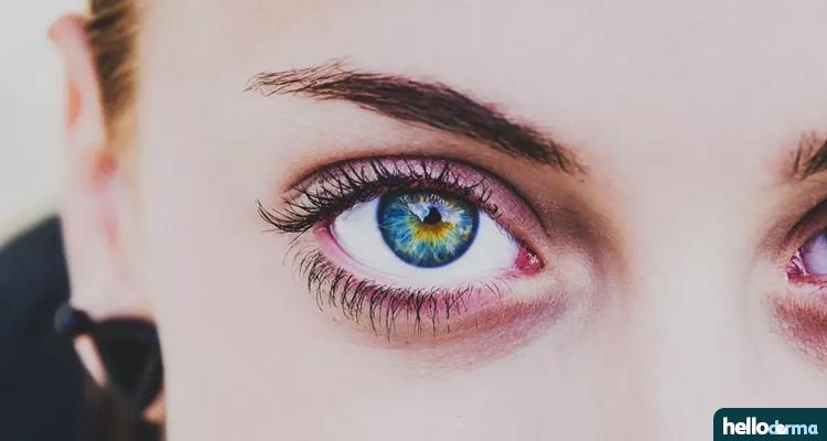 naturally get rid of Eyelid Dermatitis